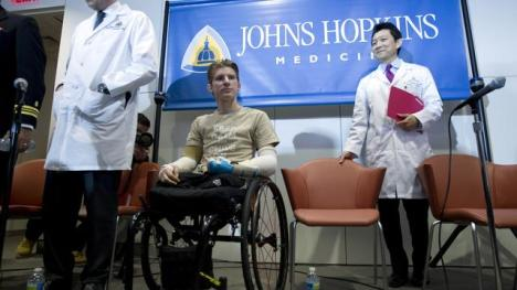 Brendan Morrocco at a news conference Jan. 29, 2013 with the surgeons who transplanted his new arms. Photo Credit PBS.org